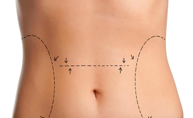 cirugia abdomen
